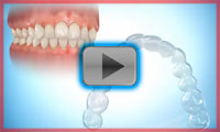 How invisalign works
