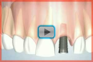 The dental implant process