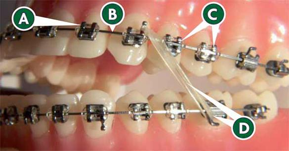 Dentistry And Orthodontics Ghana Africa Fixed